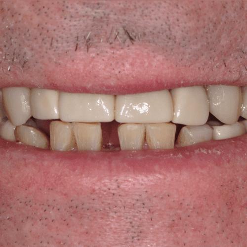 After dental care in Laurel Maryland by Laurel Smiles Dental Care