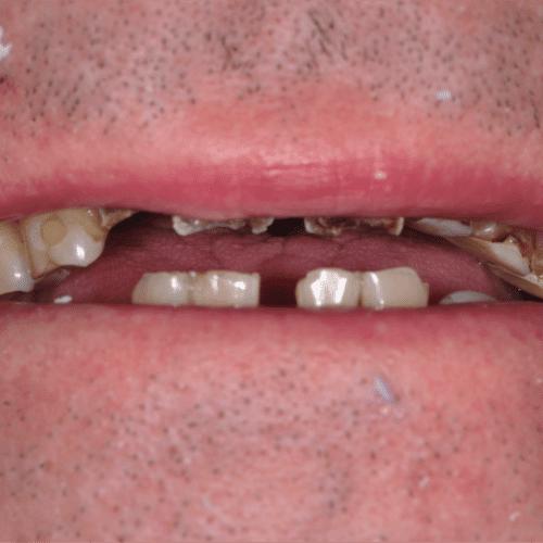 Before dental care in Laurel Maryland by Laurel Smiles Dental Care